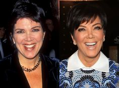 Kris Jenner isn't afraid to share the truth! She even went as far as having a facelift on an epsiode of Keeping Up With the Kardashians. You go girl!