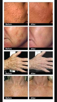 Before and After. Arbonne's Genius is amazing.