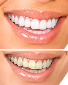 There are different types of professional teeth whitening treatments, such as dentist dispensed products that can be used at home, over-the-counter teeth whitening systems, loaded tray methods, laser teeth whitening, and in-office teeth whitening methods.