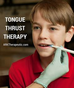 ARK Therapeutic: Tongue Thrust Therapy. Pinned by SOS Inc. Resources. Follow all our boards at pinterest.com/sostherapy/ for therapy resources.