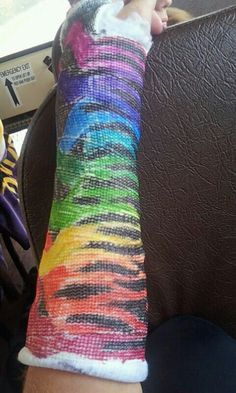 A few friends decorated my arm cast
