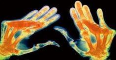 Lekári nechápu: Tento jediný minerál vyliečil artritídu a kŕče za 4 týždne u 97% pacientov | Báječné Ženy