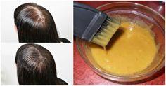 Hořčice s cukrem dělá zázraky! Díky této kúře budete mít husté vlasy, které budou mnohem rychleji růst - Navodynapady.cz Homemade Mask, Beauty Recipe, Hair Hacks, Hair Tips, Natural Remedies, Beauty Hacks, Hair Care, Health Fitness, Hair Beauty