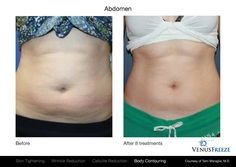 At Cosmetic Studio Bangalore, we provide high-end body sculpting treatments including Abdominoplasty, Vaser liposuction, breast enlargement/reduction treatments and much more. Get in touch with us for more information on body sculpting. Scar Treatment, Anti Aging Treatments, Skin Treatments, Best Anti Aging, Anti Aging Cream, Cellulite, Toned Tummy, Skin Resurfacing, Health