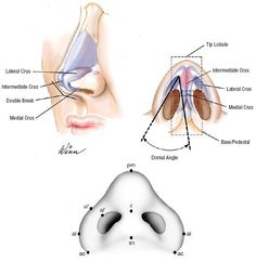 Nose Anatomy - This is modified in a nose job / rhinoplasty