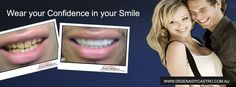 Tired of hiding your smile from others? Wish you could finally do something about your discolored, cracked, or missing teeth? Or, do you simply want to build upon your natural oral aesthetics? Vogue Smiles Melbourne can help you improve your smiles. https://heartandsoulwhisperer.com.au/the-artist/, http://drzenaidycastro.com.au/, http://melbournecosmeticdentistry.com.au/ https://heartandsoulwhisperer.com.au