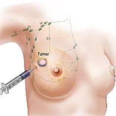 Breast Cancer Cure to come with Fewer Side Effects: Vaccine shows Promise in Trial