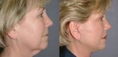 Facial Rejuvenation Secrets: Do Facial Training Routines Work Well For Face And Throat Strengthening?