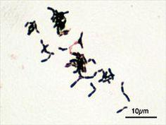 Bifidobacterium adolescentis Gram.jpg