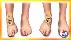 Remedios caseros para tratar el esguince de tobillo - Tratamientos natur...