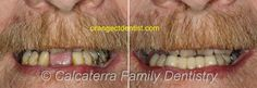 See before and after photos of how we helped John get a dental bridge over his troubled past of broken teeth and bad dentist experiences. Dental Bridge Cost, Dental Photos, Wisdom Teeth Funny, Family Dentistry, Fractions, Smile, Ceramics, Humor, Website