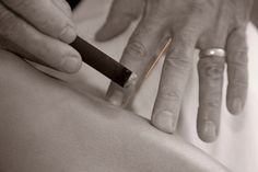 """Moxibustion is a form of fire heat treatment that stimulates specific acupuncture points of the body. The term is derived from the Japanese """"mogusa"""" meaning herb moxa (Artemisia vulgaris, commonly called mugwort) and the Latin """"bustion"""" meaning burning."""