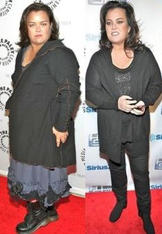 Indeed, weight loss surgery is not a magic pill or the easy way out. Great to see Rosie O'Donnell spreading the message.
