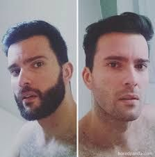 Beard and Company's beard balms are made with premium all-natural ingredients that keep your beard soft, smooth, and healthy. Beard Before And After, Before And After Shaving, Body Plastic Surgery, Long Hair Beard, Soul Patch, Cry Like A Baby, Great Beards, Full Beard, Long Beards