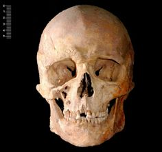 In Images: An Ancient European Hunter Gatherer   LiveScience