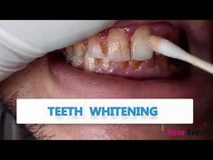 Product Information Product Name:LANBENA Teeth Whitening Essence Specifications:0.35 FL OZ Effects:Removes The Stains Resulted From Smoking And Drinking Tea Or Coffee In A More Effective Way, Whitens Yellow Teeth Completely And Sweeps Away Plaque For A Full Clean-Mouth Experience. Ingredients:Water,Alcohol,Magnolia, Teeth Whitening Procedure, Teeth Whitening System, Best Teeth Whitening, Stained Teeth, Cotton Swab, Oral Hygiene, Teeth Cleaning, Drinking Tea, Serum