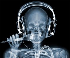 cool x ray pictures - Google Search