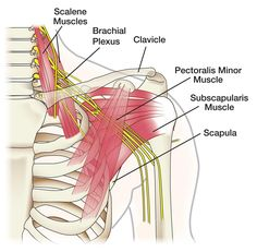 Figure 1 - The brachial plexus is a network of nerves between the neck and shoulder. Their branches form the nerves that go into the arm, forearm and hand.