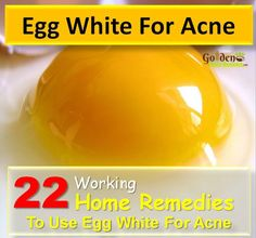 Egg White For Acne: How To Get Rid Of Acne fast, Is Egg White Good For Acne, How To Get Rid Of Acne With Egg White, How To Use Egg White For Acne,