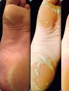 Baby Foot is weird and gross and quite possibly the best thing ever