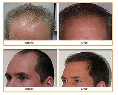 International Hair Restoration Systems is proud to offer Surgical Hair Restoration as a permanent solution for men with thinning hair. With more than 30 years of experience, IHRS has the best professionals in the field to perform Surgical Hair Transplantation. http://ihrshair4me.blogspot.com/2015/07/neograft-hair-transplantation-at-ihrs.html