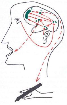 fisioterapia en la hemiplejía