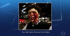 Ferida em ato contra Temer em SP diz que perdeu a visão do olho esquerdo Deborah Fabri foi atingida no olho na noite desta quarta. Protesto teve fotógrafos detidos e confronto com a Polícia Militar.