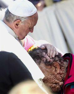 """Un hombre con una enfermedad  grave, que es rechazado por la calle, y ha inducido terror incluso en sus médicos, tiene por primera vez describió haber sido acariciado por el Papa era como """"estar en el paraíso '. Me quedó sin palabras cuando el Papa no dudó en tocarme. """"Sus manos eran tan suaves, su sonrisa tan clara y abierta. Lo que me llamó la atención fue que no dudó""""."""