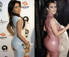 Kim Kardashian - Butt Implants - before and after surgery - - Kim Kardashian – Butt Implants – before and after surgery <! Kim Kardashian Surgery, Estilo Khloe Kardashian, Kim Kardashian Before, Kardashian Family, Kardashian Jenner, Celebrity Bodies, Celebrity Plastic Surgery, Pure Products, Womens Fashion