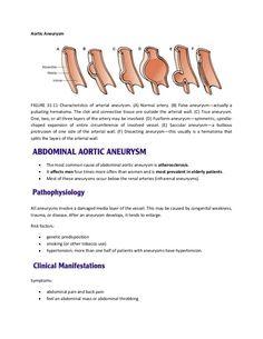 Aortic AneurysmFIGURE 31-11 Characteristics of arterial aneurysm. (A) Normal…