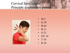 Cervical Spondylosis Principle acupuncture points <ul><li>SI 3 </li></ul><ul><li>G 39 </li></ul><ul><li>B 64 </li></ul><ul...