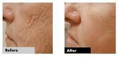 Most incredible results using Luminesce Cellular Rejuvenation Serum. Free 10 day sample @http://jeanhedger.jeunesseglobal.com