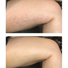 Cellulite Skin Tightening Tummy Tuck Oil for | Etsy Oil For Stretch Marks, Loose Skin, Tummy Tucks, Sagging Skin, Skin Elasticity, Skin Tightening, Facial Masks, Face Skin, Cellulite