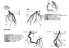 One lucky soul...First 2 images are normal coronary