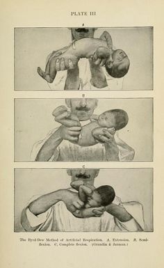 From Louis Fischer's 1912 Diseases of Infancy and Childhood. I find this concept of scrunching up a baby for artificial respiration terribly fascinating. Vintage Nurse, Vintage Medical, Human Oddities, Women In History, History Pics, Infancy, Anatomy Art, Medical History, Ephemera
