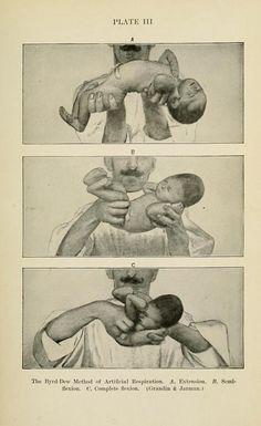 "Como dar Respiración artificial a un bebé. Tomado de ""Louis Fischers' Diseases of Infancy and Childhood"", 1912."