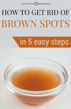 Ways to get Rid Of Brown Spots on Face Sun Spots On Skin, Black Spots On Face, Brown Spots On Hands, Age Spots On Face, Spots On Legs, Dark Spots, How To Get Rid, How To Remove, How To Make