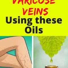Heavy Weight Life | Cure Your Varicose Veins Using these Oils