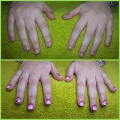 Acrylic Nails + Shellac CND