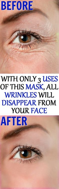 In today's article, we are going to show you, how to make a mask, that will assist you in erasing all wrinkles from your face, with only 3 uses !