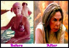 Elsa Patton Plastic Surgery Before And After – www.celeb-surgery… – Kathy Hansen Elsa Patton Plastic Surgery Before And After – www.celeb-surgery… Elsa Patton Plastic Surgery Before And After – www. Botched Plastic Surgery, Bad Plastic Surgeries, Plastic Surgery Gone Wrong, Plastic Surgery Procedures, Celebrity Plastic Surgery, Plastic Surgery Pictures, Nada Personal, Elsa, Under The Knife