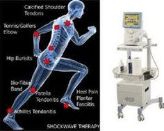 Shockwave Therapy healthmedica
