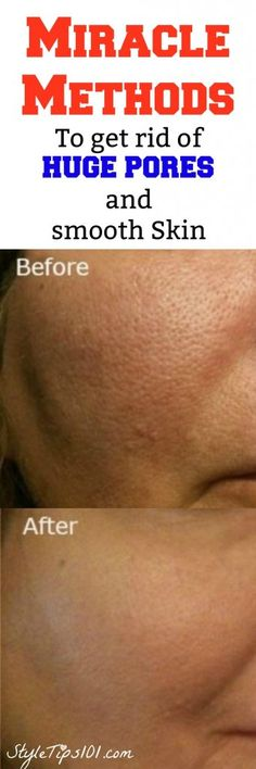 get rid of large pores