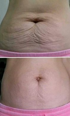 Incredible results with Nerium Firm!   Visit my website for product info and a fabulous business opportunity!  www.wrinkleresults.nerium.com