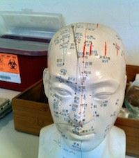 Acupuncture Helps Stroke Recovery