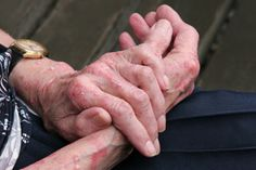 Learn the difference between hand Eczema and other areas of the body that suffer from symptoms.