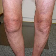 Knee Arthritis - http://mdtherapeutics.com/collections/frontpage/products/regenerix-gold