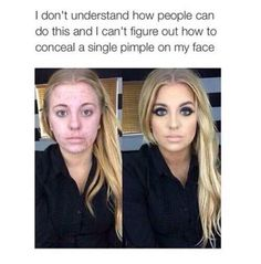Freaks me out when I see them without makeup. I don't understand how most have bad acne unless it's from the makeup? Before And After Acne, Makeup Before And After, Power Of Makeup, Beauty Makeup, Hair Beauty, Acne Makeup, Real Beauty, Maquillage Mary Kay, Bad Acne