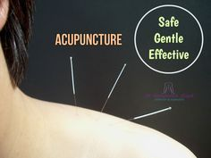 Acupuncture can effectively treat many types of pain in a safe, natural way, often eliminating the need for multiple medications.   #AcupunctureHour #ChineseMedicine #Health #Wellness #Healing #PainRelief #Needle #CooperCity #Dr_SamBoyd
