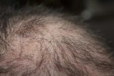 Hair loss is such a problem, of people Today has a hair fall problem and to save their beauty, people waste a lot of money in hair transplant. Hair Remedies For Growth, Home Remedies For Hair, Hair Loss Remedies, Hair Growth, Hair Loss Causes, Prevent Hair Loss, Hair Loss Clinic, Vitamins For Hair Loss, Reduce Hair Fall
